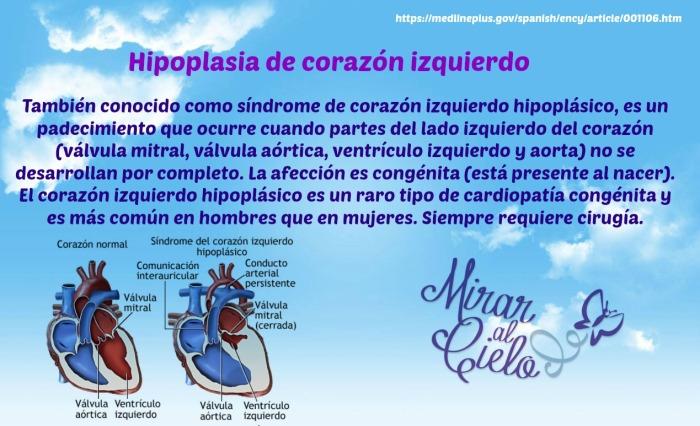 Hipoplasia de corazón izquierdo